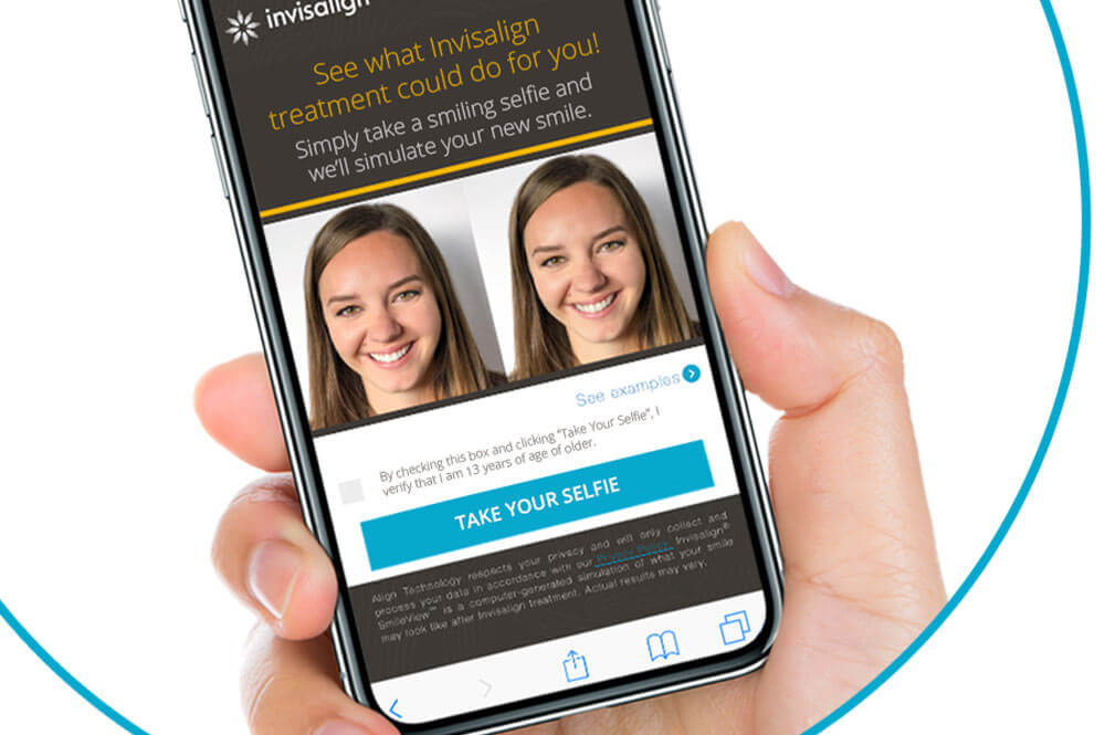 INVISALIGN SMILEVIEW™ FOR A GLIMPSE INTO THE FUTURE